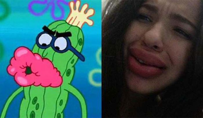 The Kylie Jenner Lip Challenge Continues To Give Girls Fish Lips