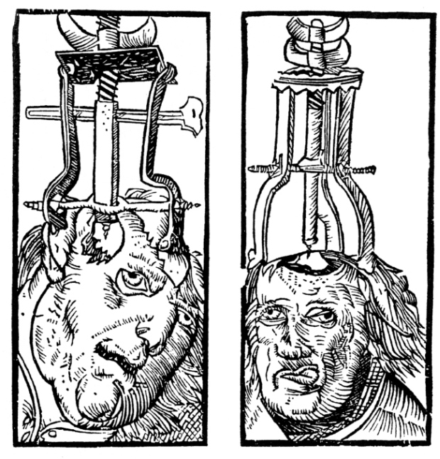 Bizarre Medical Devices That Were Used During Medieval Times