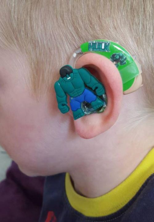 This Mom Created The Coolest Hearing Aids Ever For Her Hearing Impaired Son