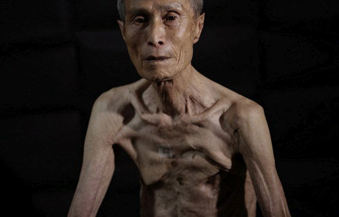 Nagasaki Bomb Survivor Shows Off The Scars Of Nuclear War