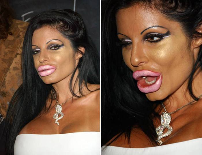 Plastic Surgery Gone Wrong, part 2