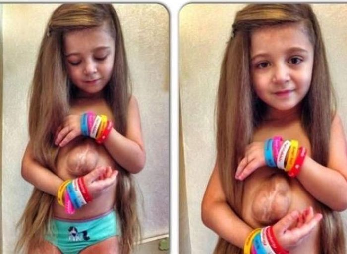 Six Year Old Girl Born With Her Heart Outside Of Her Chest Is Defying The Odds