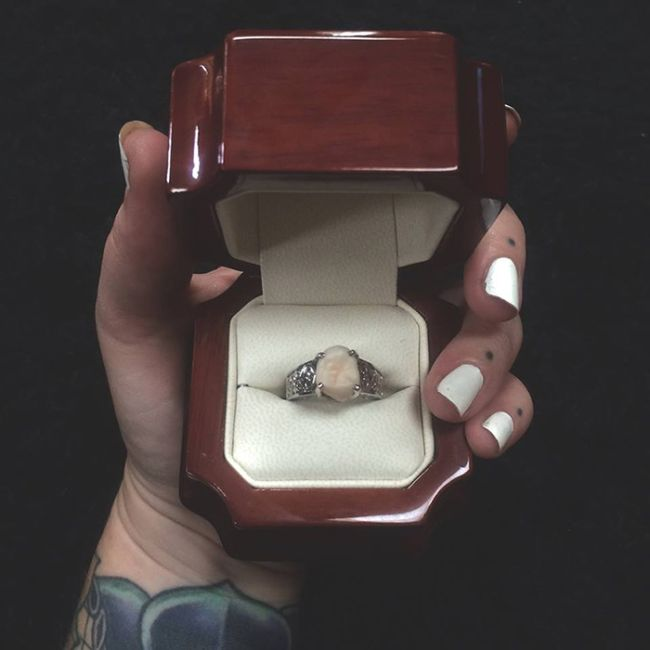 Instead Of A Diamond This Woman Got A Wisdom Tooth In Her Engagement Ring