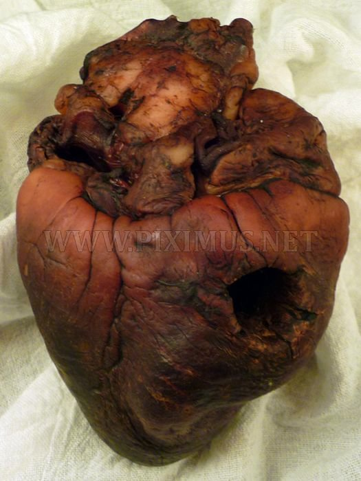 Mummified Vampire Heart is for Sale on Ebay