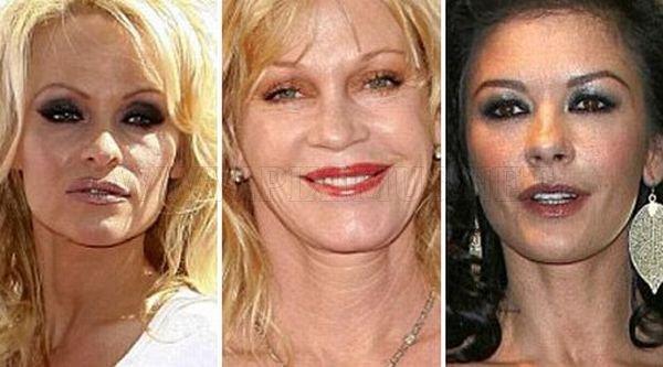 The Worst Celebrity Knees