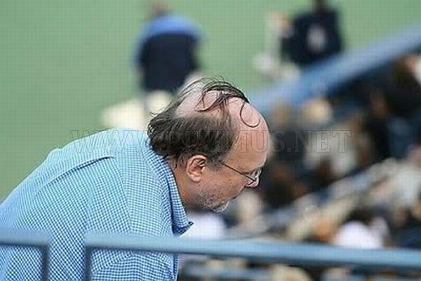 Funniest Comb-Overs