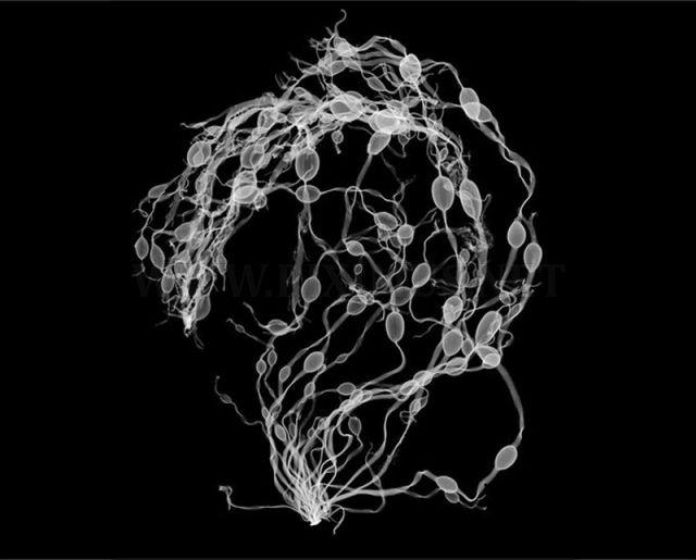 Amazing X-Ray Artwork