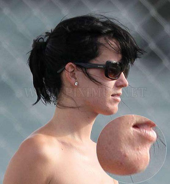 Celebrities with Physical Defects
