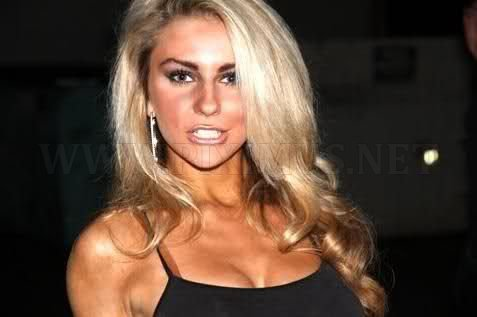 Courtney Stodden after and before plastic surgery