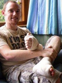 Big Toe Transplantation