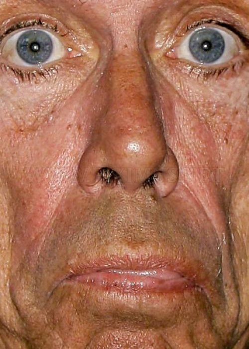 20 of the scariest celebrity faces made in 2011, part 2011