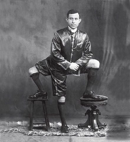 Francesco Lentini, a Man with Three Legs
