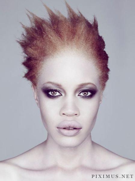 Diandra Forrest – Afro-American Albino Model