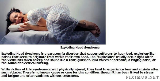 Weirdest Medical Syndromes