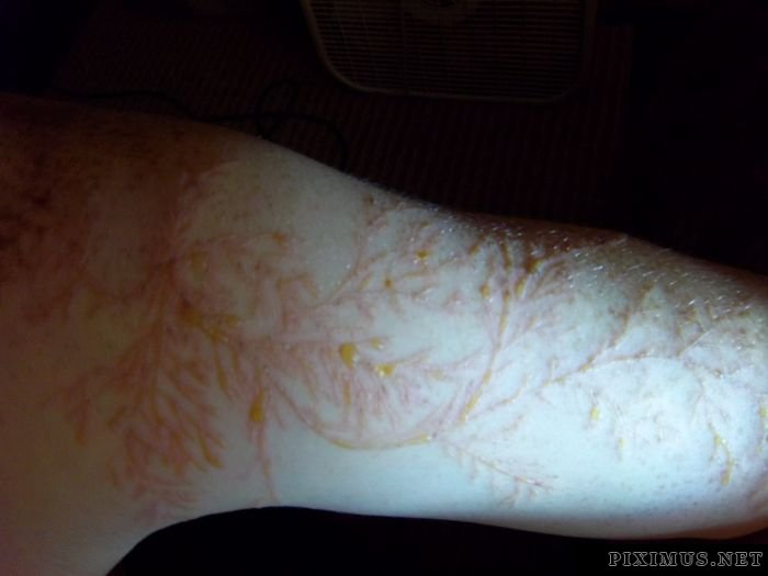 Lichtenberg Figure. Human Skin Struck by Lightning