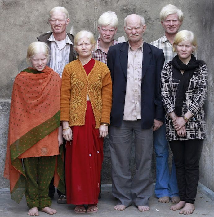 World's Biggest Albino Family