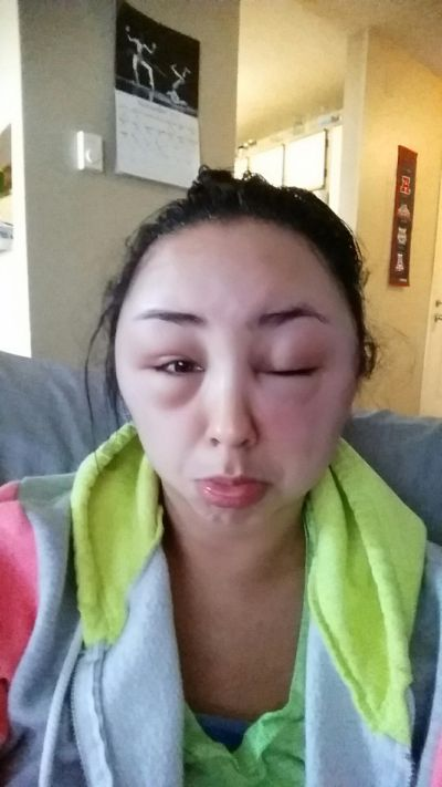 Girl Ends Up With A Swollen Face After Having A Bad Reaction To Hair Dye