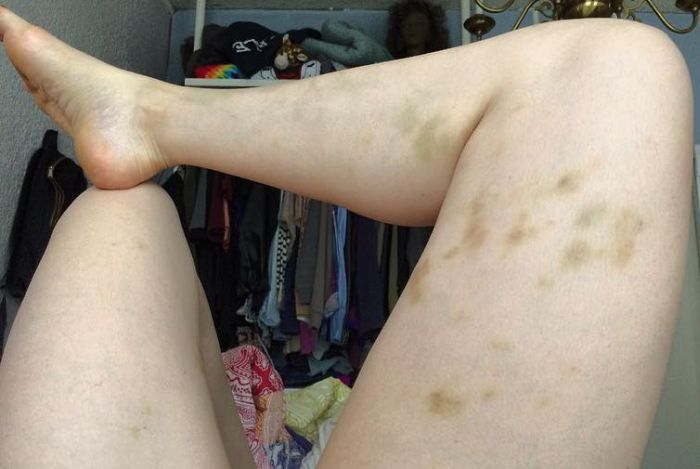 Comedian Posts Graphic Photo And Gets Serious About Abusive Relationships