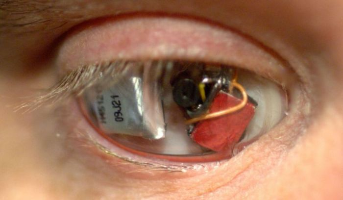 A Man Named Rob Spence Replaced His Glass Eye With A Camera