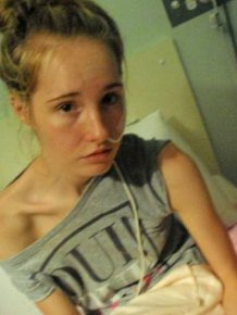 Girl Makes Amazing Recovery After Almost Losing Her Life To Anorexia