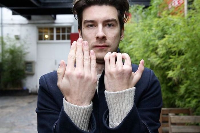 Actor Richard Stott Had His Fingers Replaced By Toes Due To A Birth Defect