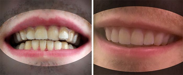 College Student Saves Thousands Of Dollars By 3D Printing His Own Braces
