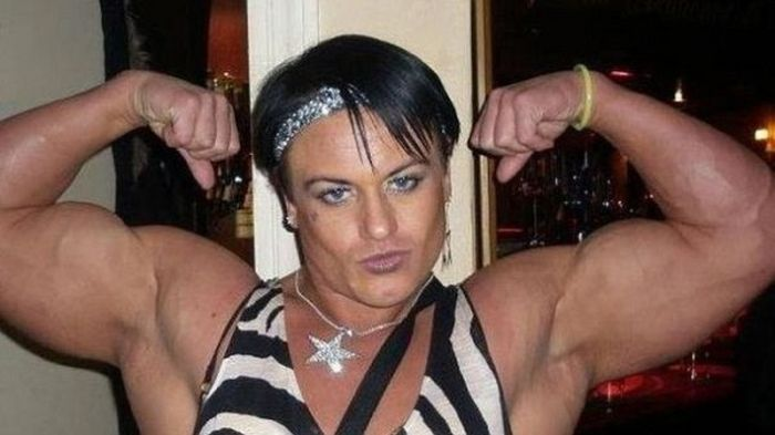 Steroid Abuse Had Some Negative Side Effects On This Woman