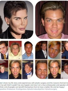 This Guy Really Messed Up His Face While Turning Himself Into A Human Ken Doll