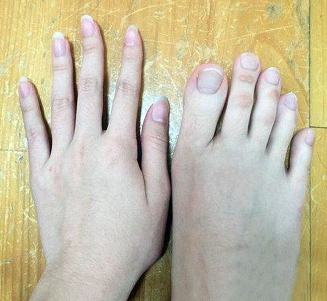 Can You Tell Which Ones Are Fingers And Which Ones Are Toes?