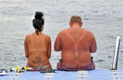 Tanning Fails Don't Get Much Worse Than This