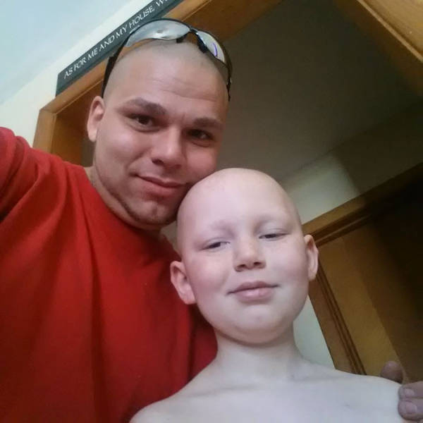 Loving Father Gets Tattoo On His Head To Match His Son's Scar