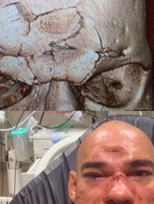 Evangelista Santos Suffers Fractured Skull Taking A Knee To The Forehead