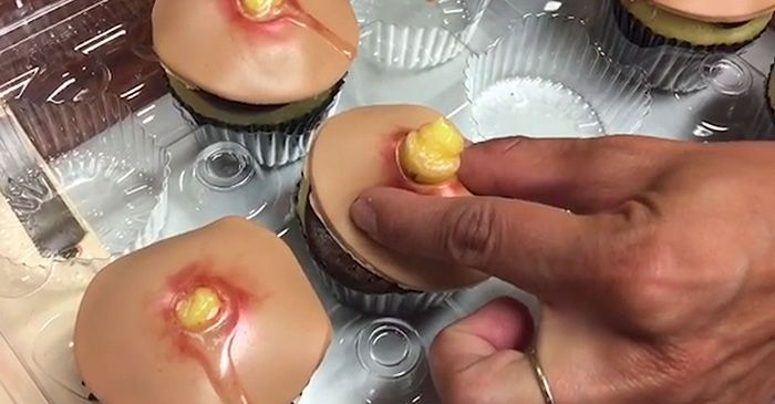 Now You Can Get Pimple Cupcakes With Squeezable Heads