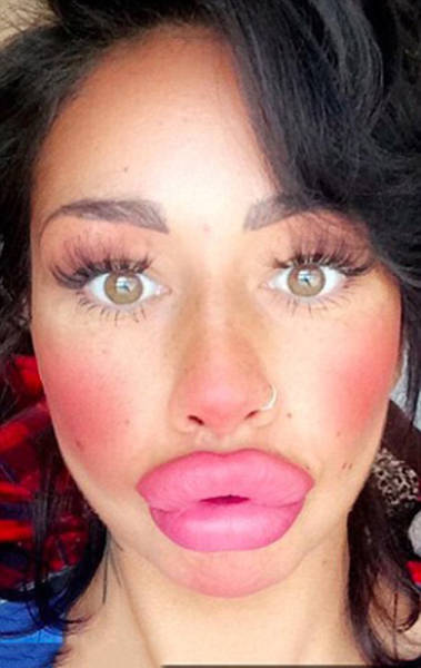 This Woman Wants To Take Her Huge Lips And Make Them Even Bigger