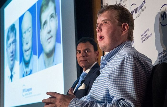 New York Firefighter Adjusts To His New Life After Receiving A Face Transplant