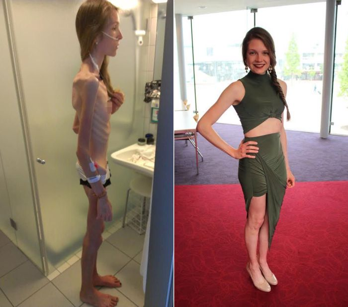 Anorexic Girl Inspires People To Get Healthy After Being Days Away From Death