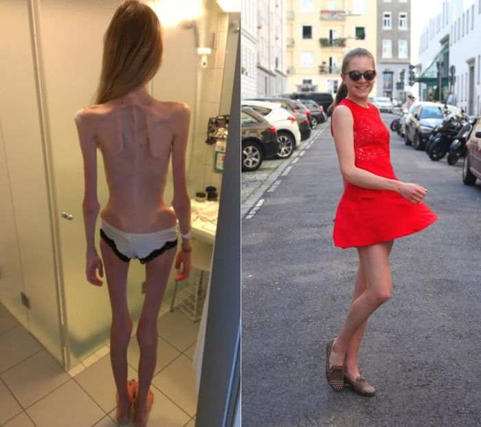 Anorexic Girl Inspires People To Get Healthy After Being