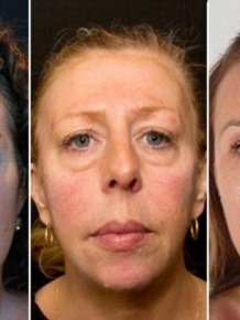 One Of These Women Has Had Filler For 10 Years