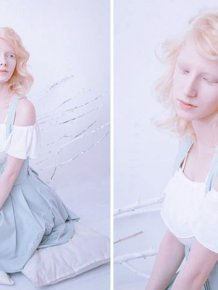 You'll Be Amazed By These Albino People And Their Unique Beauty
