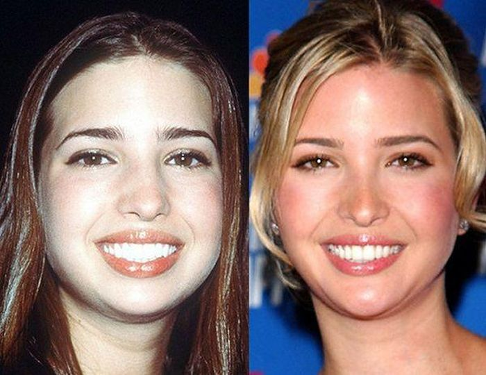 Photos Show How Much Ivanka Trump Has Changed Over The Years