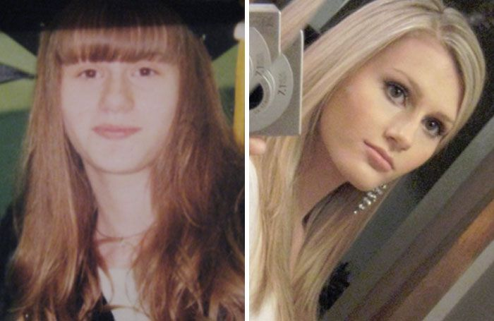 People Share Their Unbelievable Ugly Duckling Transformations