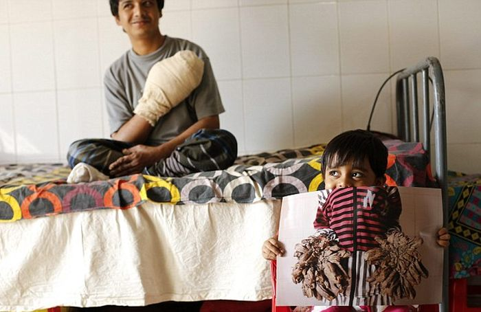 Bangladesh Man With Rare Disease Finally Cured