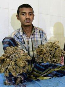 Bangladesh Man With Rare Disease Finally Cured