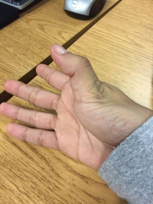 How To Dislocate Your Thumb