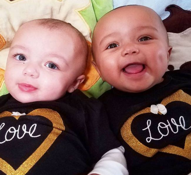 These Adorable Twin Sisters Have Defied The Laws Of Nature