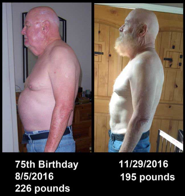 Elderly Man Shares Stunning Weight Loss Photos