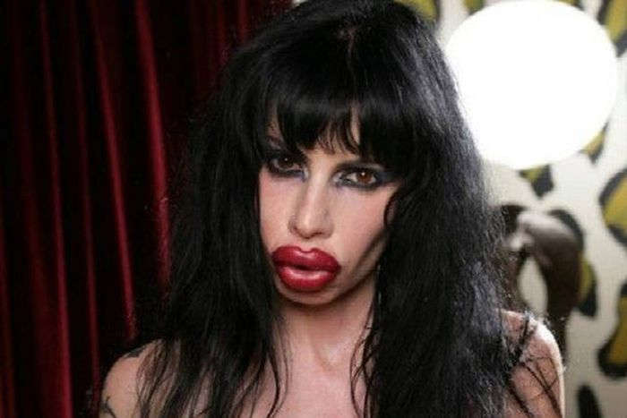 Irreversible Plastic Surgery Fails That Are Straight Up Scary