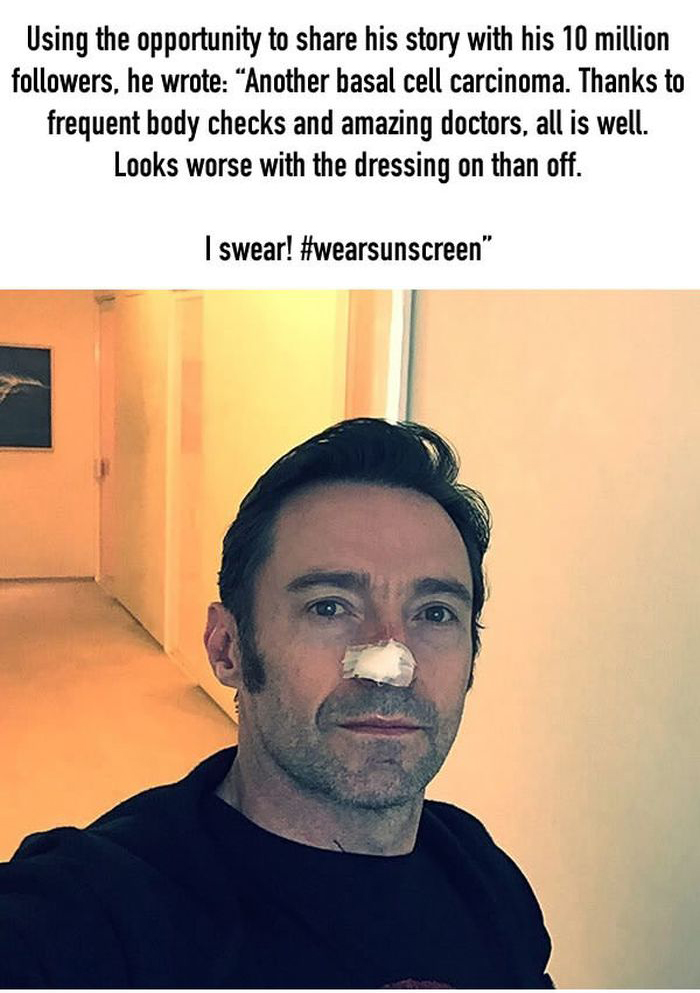 Hugh Jackman Warns Fans To Wear Sunscreen