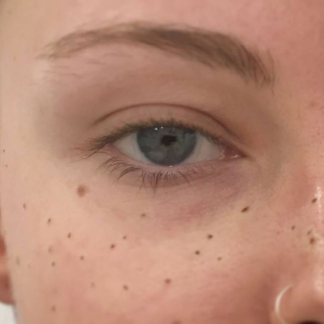 Tattooing Freckles On Your Face Is The Latest Beauty Craze