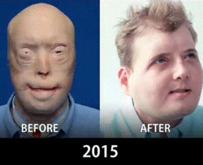 How Face Transplants Have Evolved